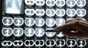 5 of the Most Overlooked Topics on the Radiology Board Review