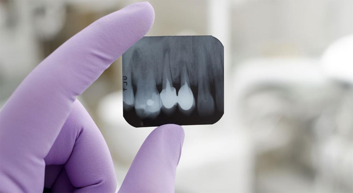 National Board of Dental Examination Tips