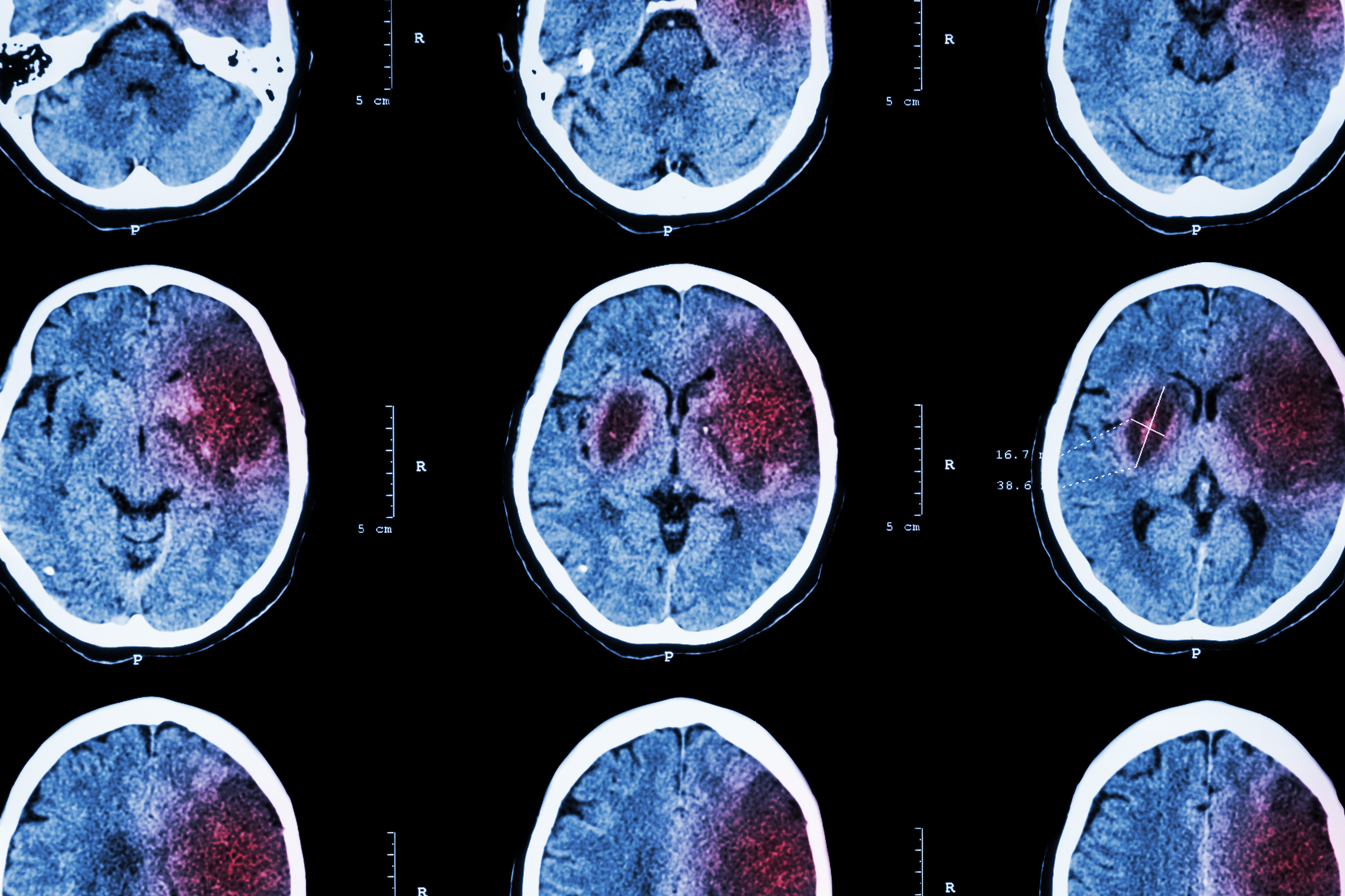 Free Neurology Sample Board Review Questions