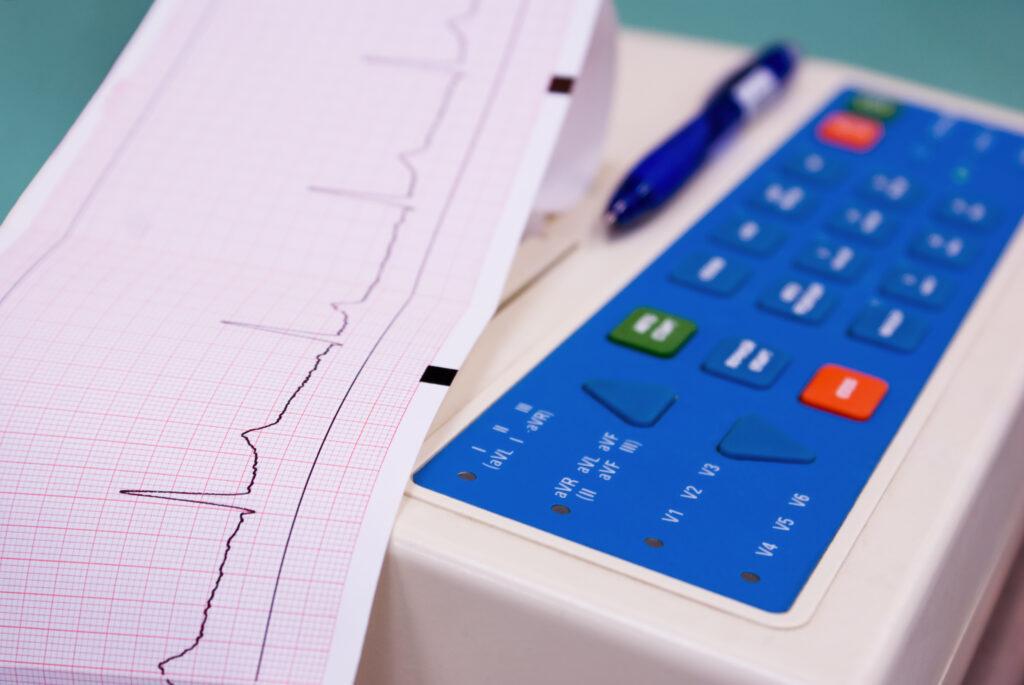 Cardiograph