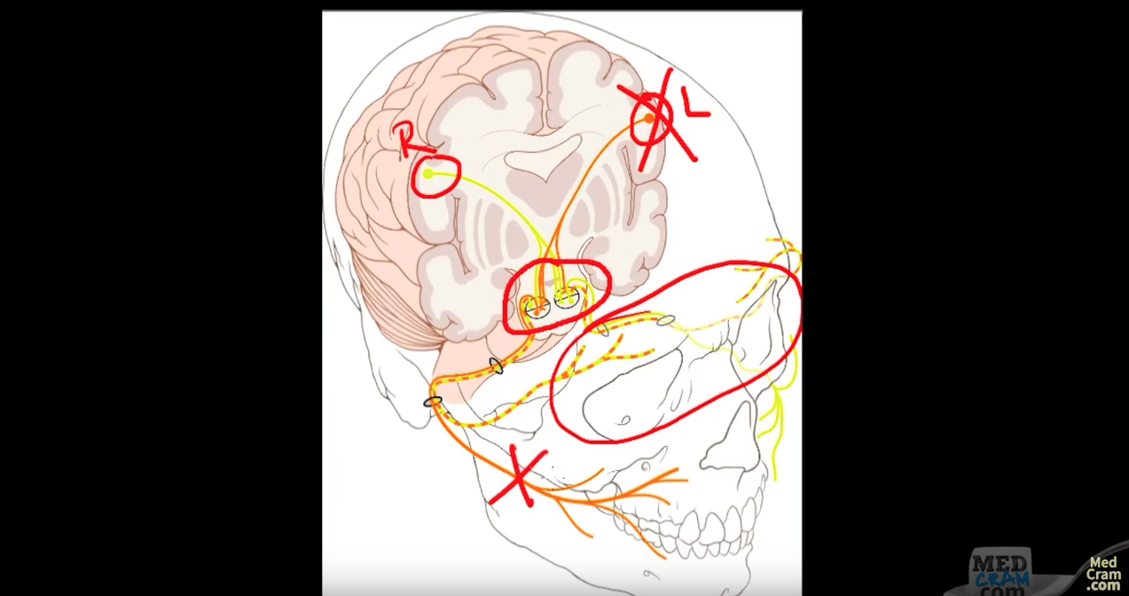 Bell's Palsy Family Medicine Board Practice Question, Video Explanation