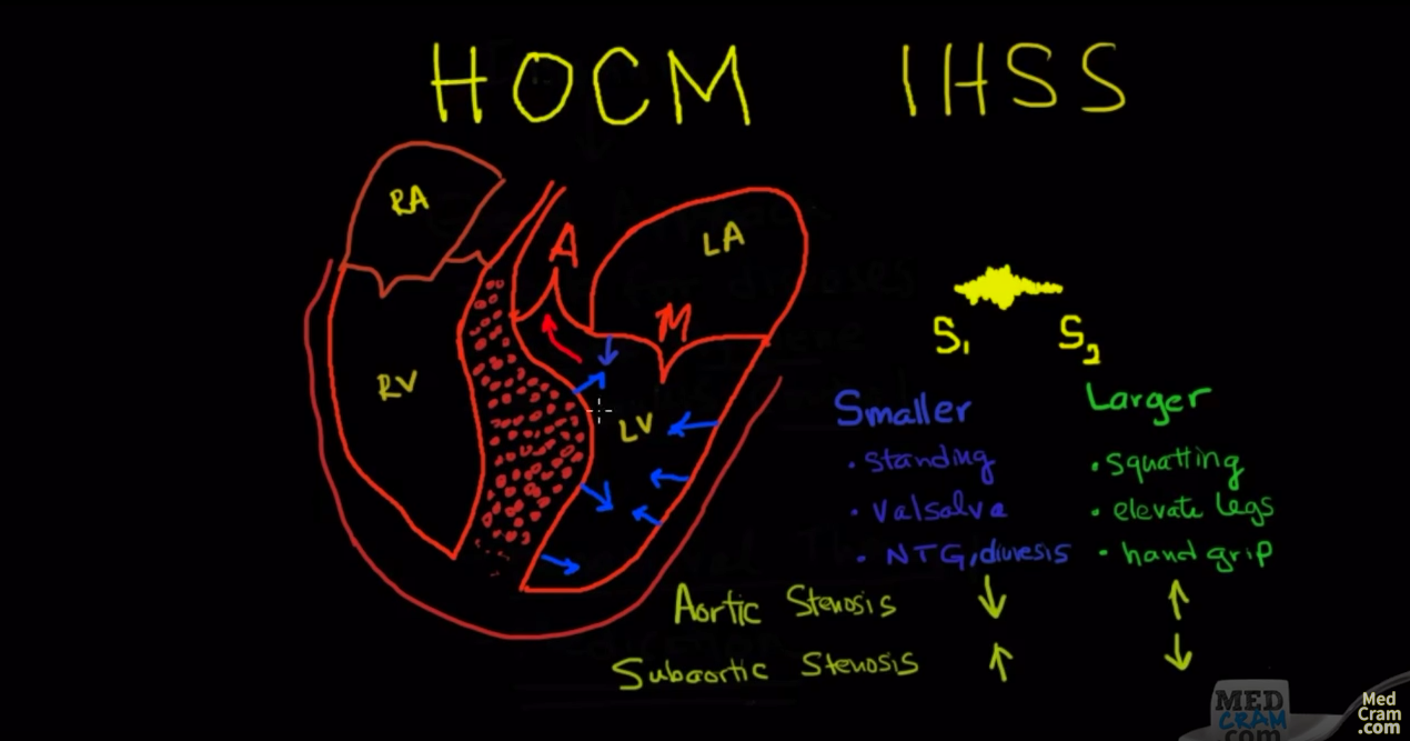 Cardiology board review news and information hypertropic cardiomyopathy a board review question explained by video cardiology fandeluxe Images