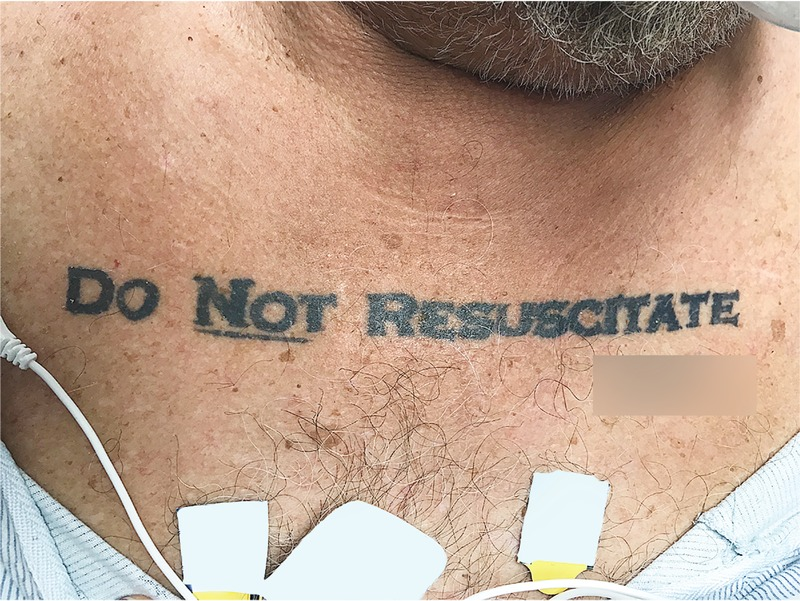 Do Not Resuscitate Tattoos