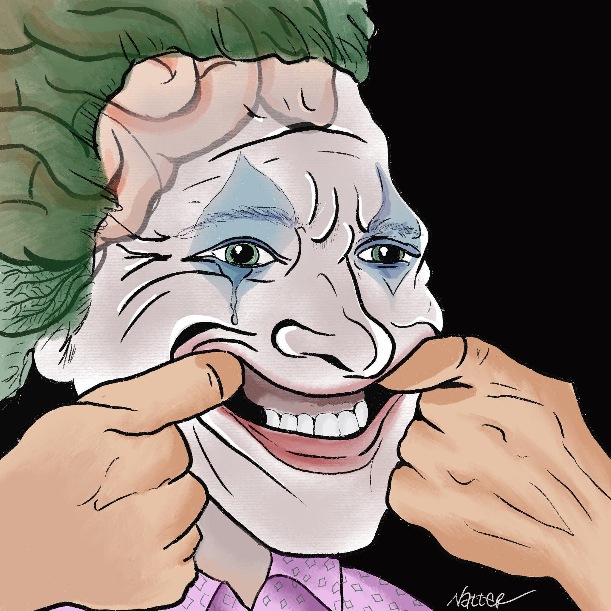 Did Pseudobulbar Affect Cause the Joker's Laughing Condition?