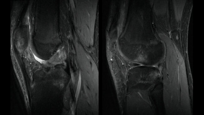 MRI of a football player sports medicine question